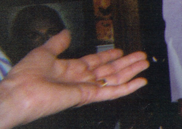 Enlargement of Hand Photo